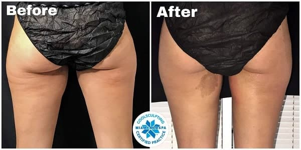 CoolSculpting-Foot thighs